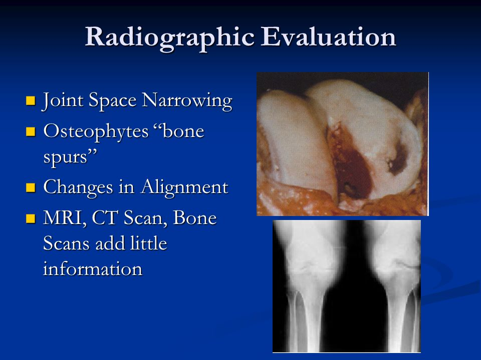 Radiographic Evaluation Joint Space Narrowing Joint Space Narrowing Osteophytes bone spurs Osteophytes bone spurs Changes in Alignment Changes in Alignment MRI, CT Scan, Bone Scans add little information MRI, CT Scan, Bone Scans add little information