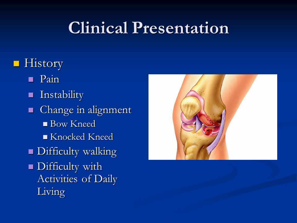 Clinical Presentation History History Pain Pain Instability Instability Change in alignment Change in alignment Bow Kneed Bow Kneed Knocked Kneed Knocked Kneed Difficulty walking Difficulty walking Difficulty with Activities of Daily Living Difficulty with Activities of Daily Living
