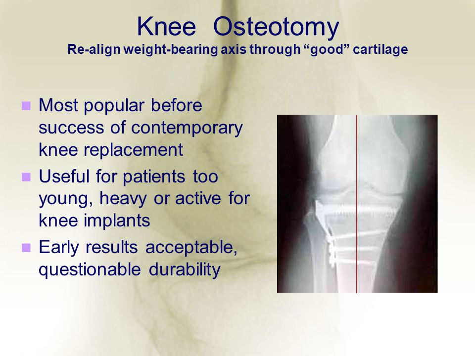 Knee Osteotomy Re-align weight-bearing axis through good cartilage Most popular before success of contemporary knee replacement Useful for patients to