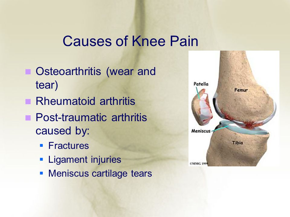 Causes of Knee Pain Osteoarthritis (wear and tear) Rheumatoid arthritis Post-traumatic arthritis caused by: Fractures Ligament injuries Meniscus carti
