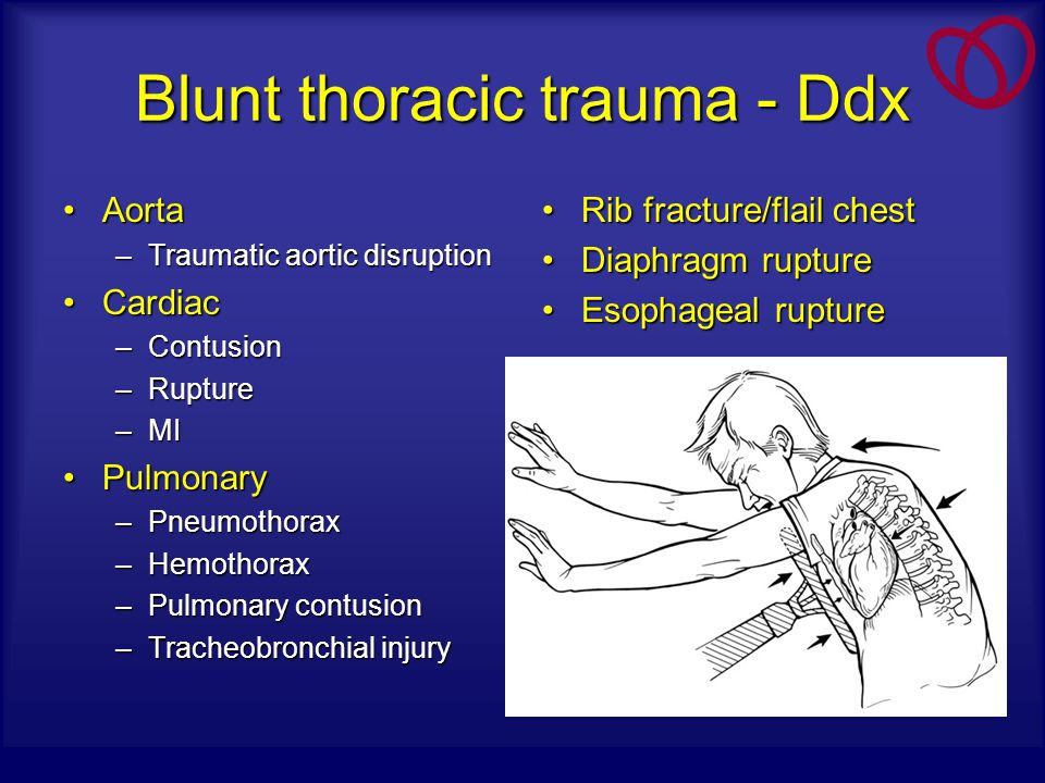 Blunt thoracic trauma - Ddx AortaAorta –Traumatic aortic disruption CardiacCardiac –Contusion –Rupture –MI PulmonaryPulmonary –Pneumothorax –Hemothora