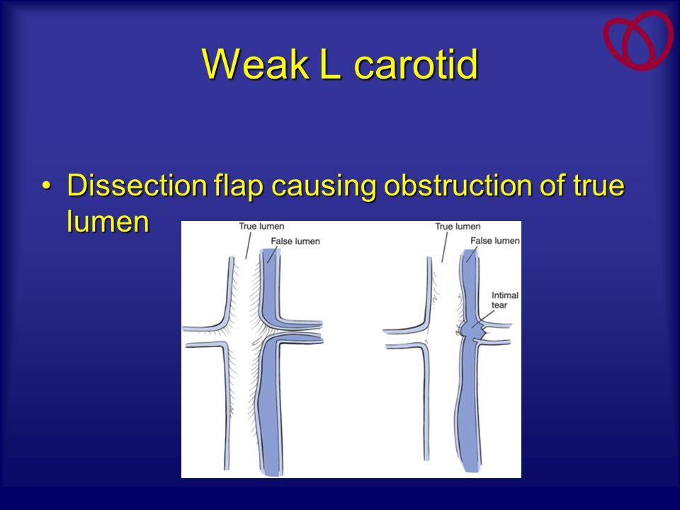 Weak L carotid Dissection flap causing obstruction of true lumenDissection flap causing obstruction of true lumen