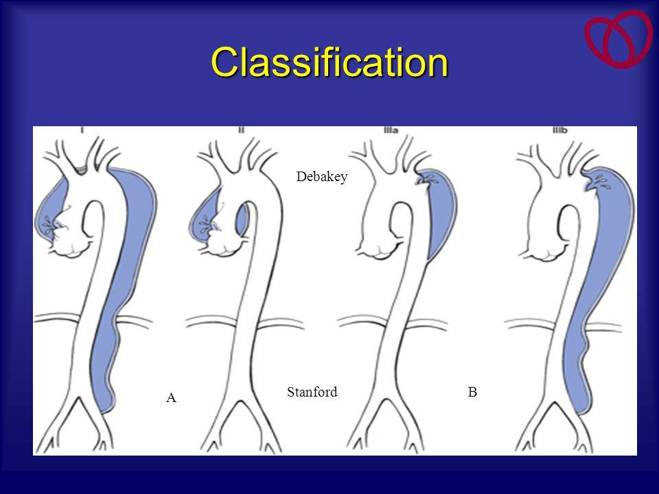 Classification A B Debakey Stanford