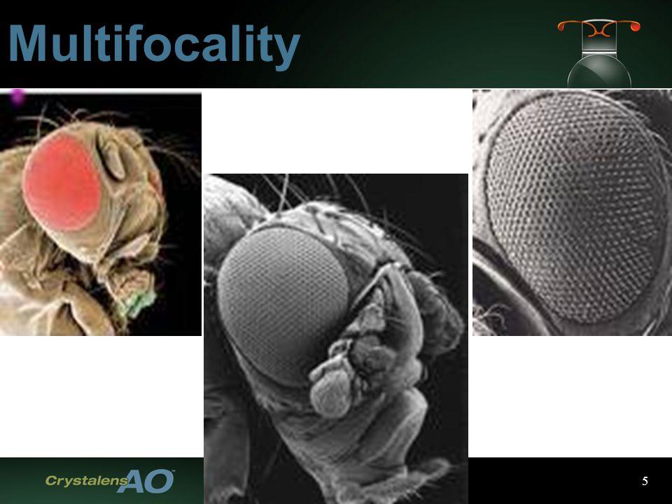 5 Multifocality