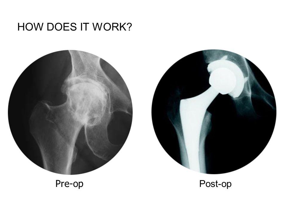 Pre-op Post-op FPO iStockPhoto $12-18 9799592 HOW DOES IT WORK?