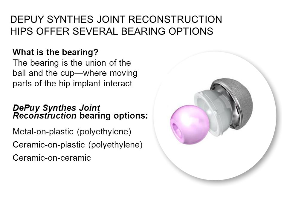 What is the bearing? The bearing is the union of the ball and the cupwhere moving parts of the hip implant interact DePuy Synthes Joint Reconstruction