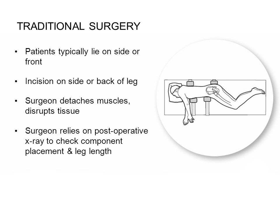 Patients typically lie on side or front Incision on side or back of leg Surgeon detaches muscles, disrupts tissue Surgeon relies on post-operative x-r