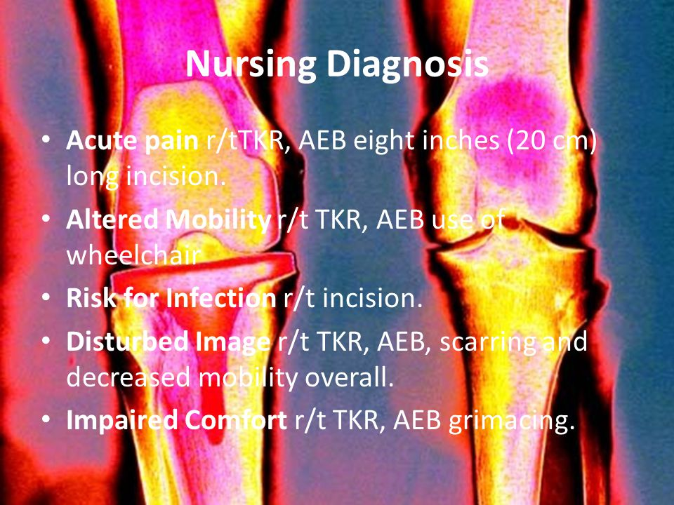 Nursing Diagnosis Acute pain r/tTKR, AEB eight inches (20 cm) long incision. Altered Mobility r/t TKR, AEB use of wheelchair Risk for Infection r/t in
