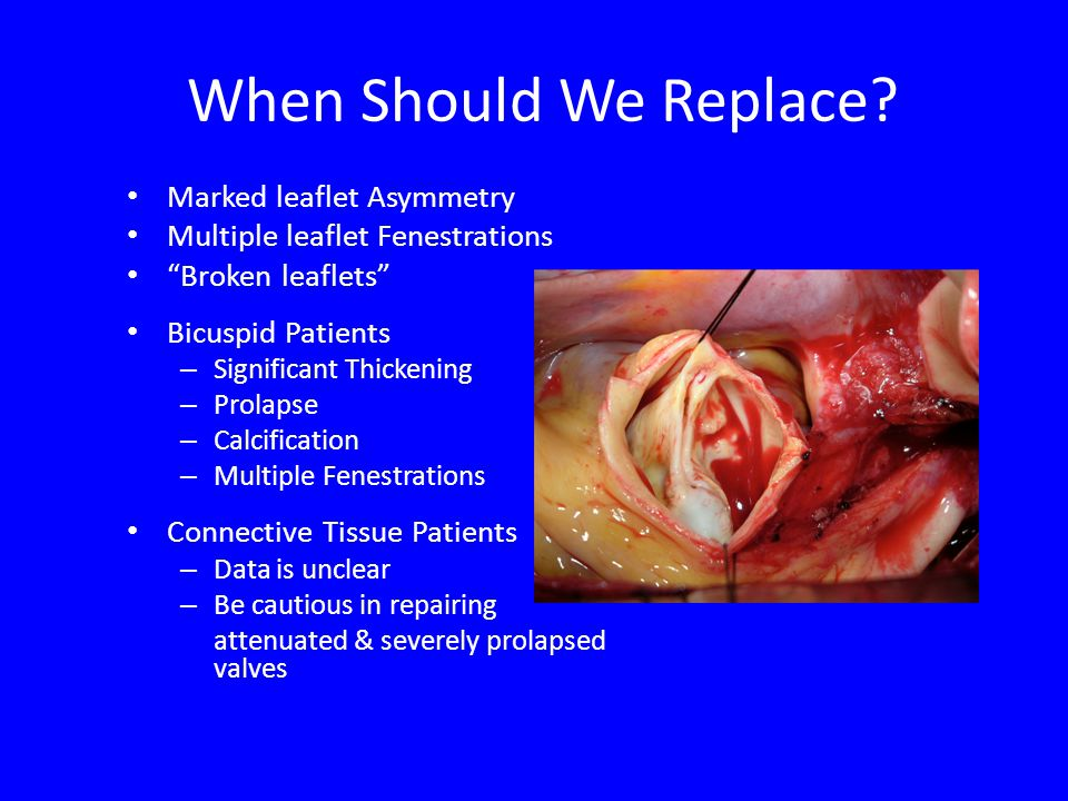 When Should We Replace? Marked leaflet Asymmetry Multiple leaflet Fenestrations Broken leaflets Bicuspid Patients – Significant Thickening – Prolapse