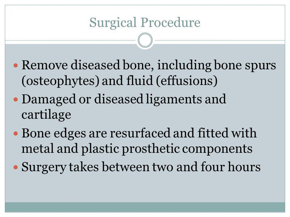 Surgical Procedure Remove diseased bone, including bone spurs (osteophytes) and fluid (effusions) Damaged or diseased ligaments and cartilage Bone edg