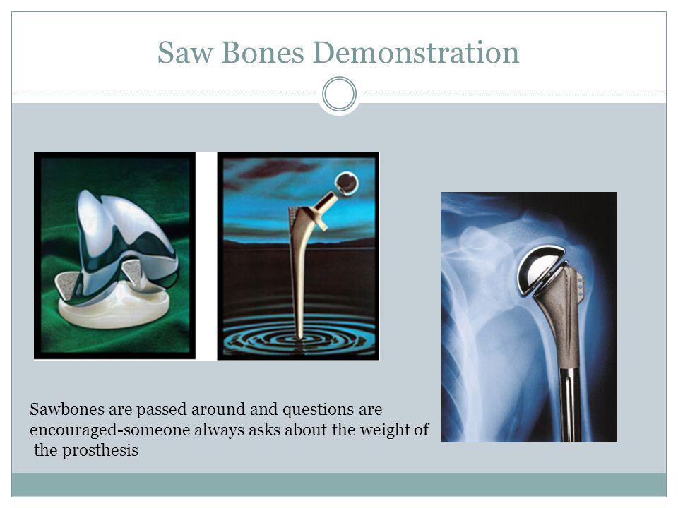 Saw Bones Demonstration Sawbones are passed around and questions are encouraged-someone always asks about the weight of the prosthesis