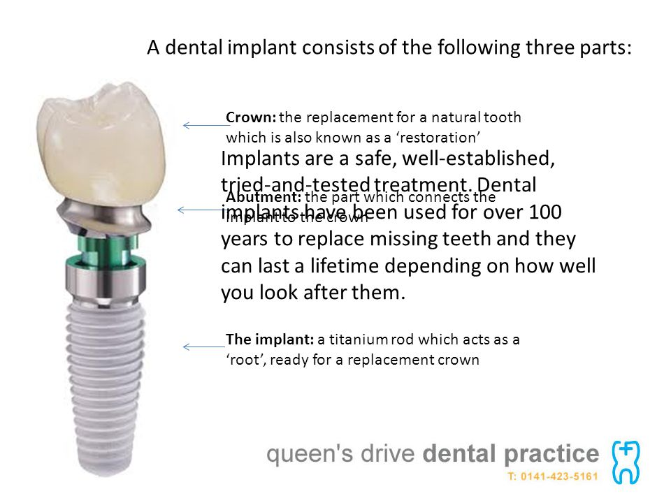 A dental implant consists of the following three parts: The implant: a titanium rod which acts as a root, ready for a replacement crown Abutment: the