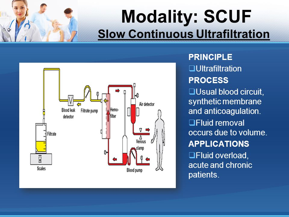 Modality: SCUF Slow Continuous Ultrafiltration PRINCIPLE Ultrafiltration PROCESS Usual blood circuit, synthetic membrane and anticoagulation. Fluid re