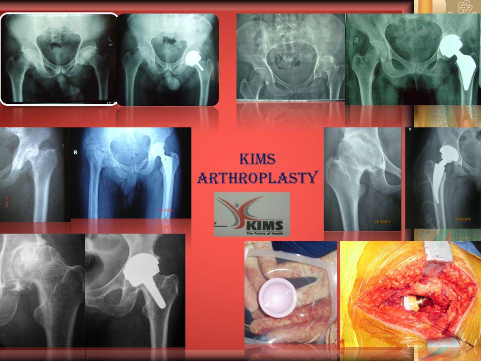 KIMS ARTHROPLASTY