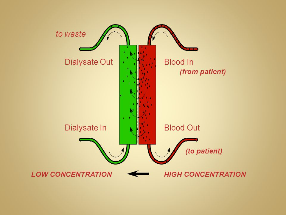Dialysate Out Dialysate In Blood In Blood Out to waste (from patient) (to patient) HIGH CONCENTRATIONLOW CONCENTRATION
