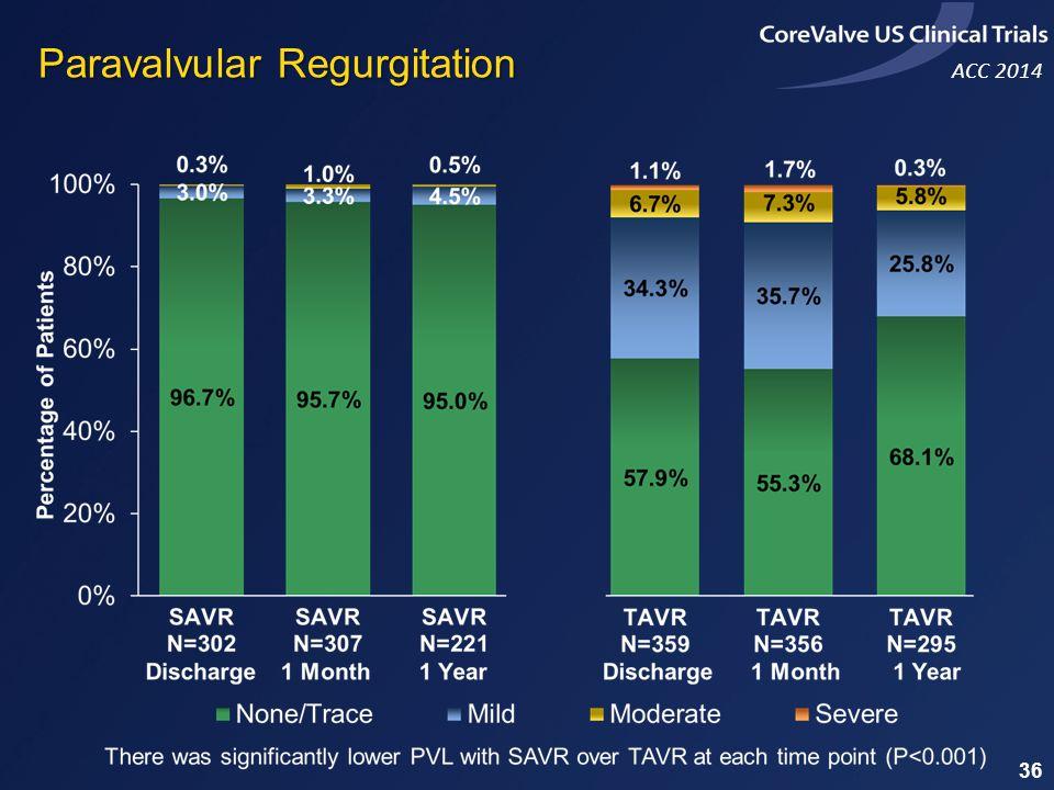 ACC 2014 Paravalvular Regurgitation 36