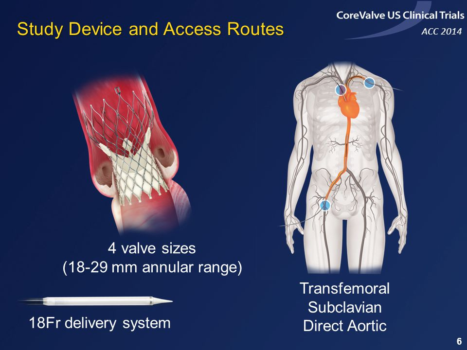 ACC 2014 18Fr delivery system 4 valve sizes (18-29 mm annular range) Transfemoral Subclavian Direct Aortic Study Device and Access Routes 6