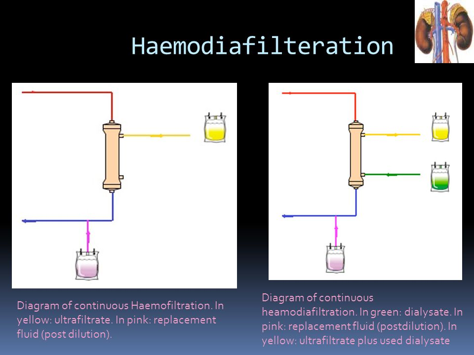 Diagram of continuous Haemofiltration. In yellow: ultrafiltrate. In pink: replacement fluid (post dilution). Diagram of continuous heamodiafiltration.