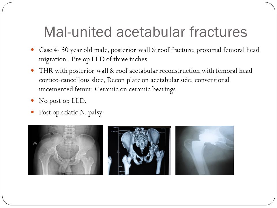 Mal-united acetabular fractures Case 4- 30 year old male, posterior wall & roof fracture, proximal femoral head migration.