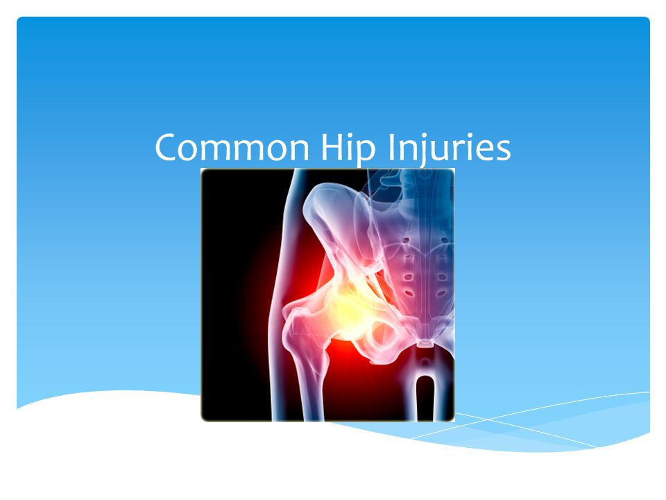 Common Hip Injuries