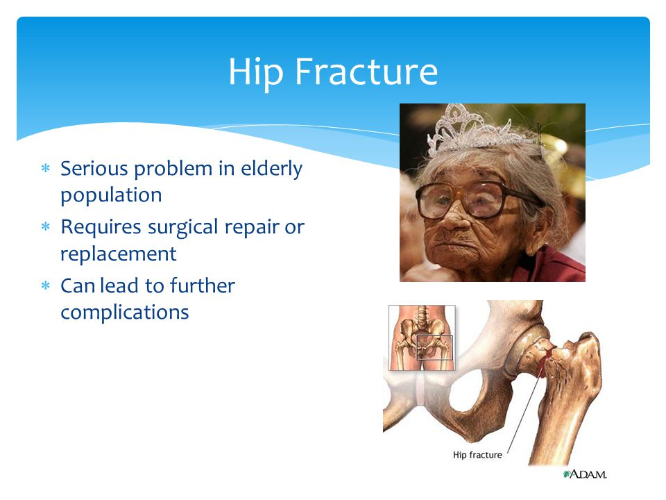 Hip Fracture Serious problem in elderly population Requires surgical repair or replacement Can lead to further complications