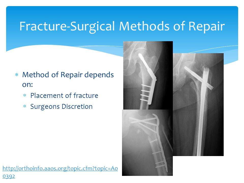 Fracture-Surgical Methods of Repair Method of Repair depends on: Placement of fracture Surgeons Discretion http://orthoinfo.aaos.org/topic.cfm?topic=A