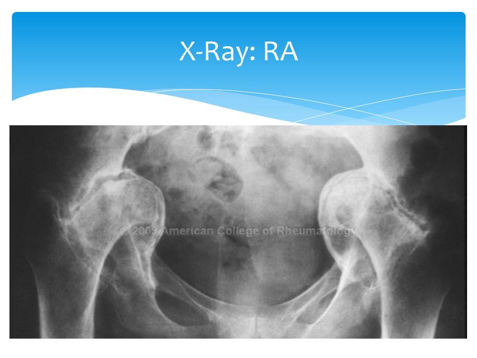X-Ray: RA
