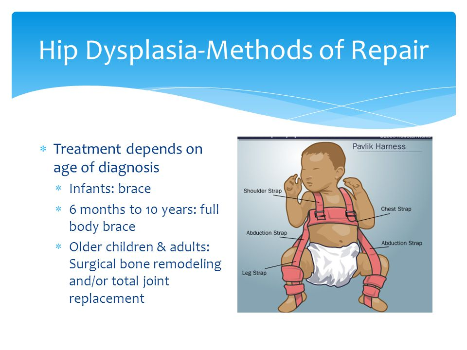 Hip Dysplasia-Methods of Repair Treatment depends on age of diagnosis Infants: brace 6 months to 10 years: full body brace Older children & adults: Su