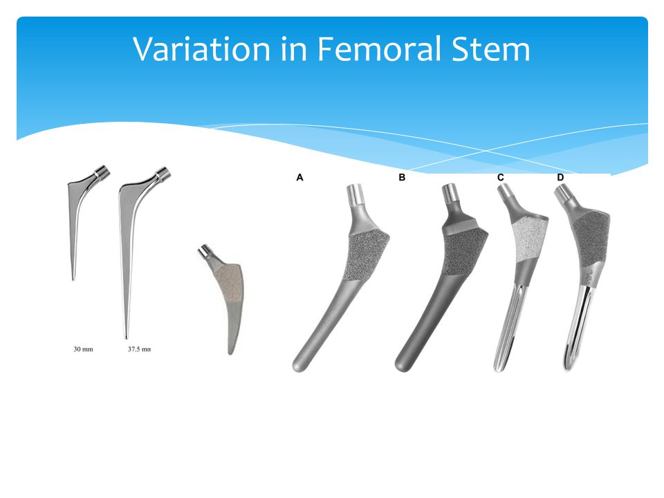 Variation in Femoral Stem