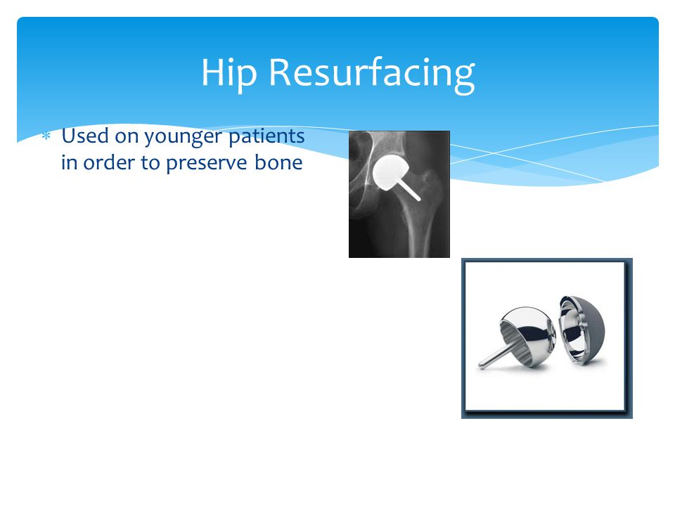 Hip Resurfacing Used on younger patients in order to preserve bone