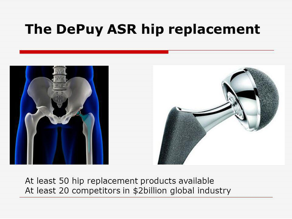 The DePuy ASR hip replacement At least 50 hip replacement products available At least 20 competitors in $2billion global industry