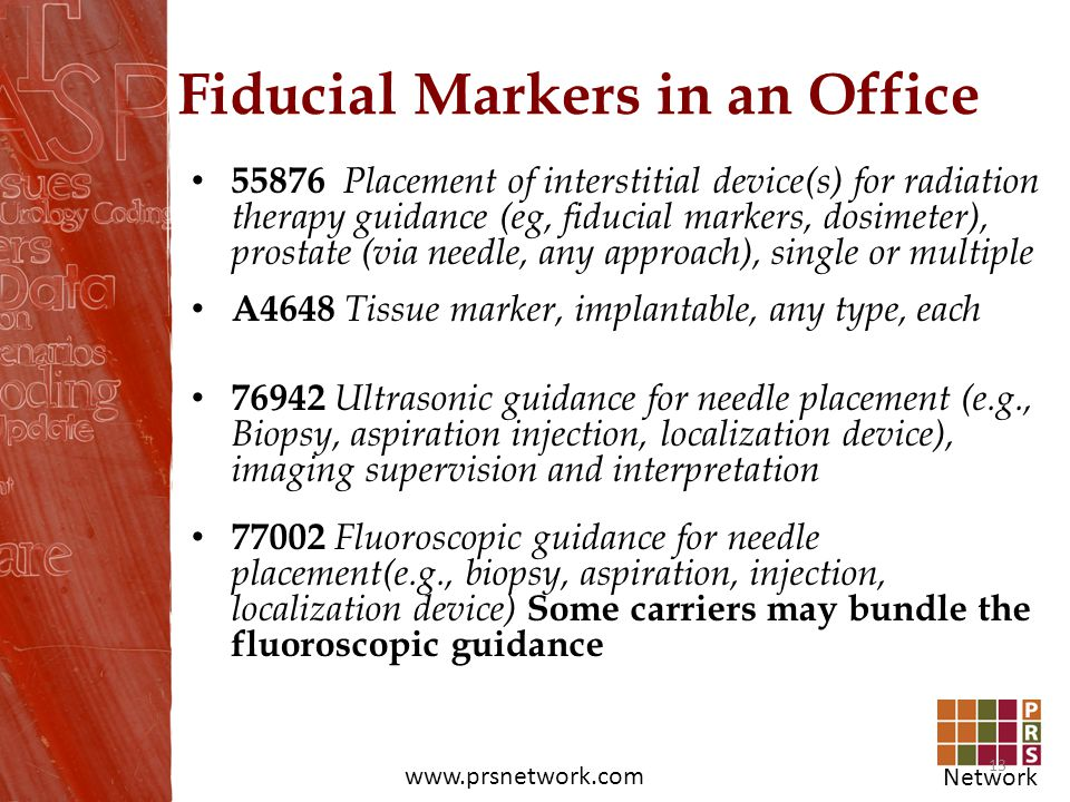 Network www.prsnetwork.com Fiducial Markers in an Office 55876 Placement of interstitial device(s) for radiation therapy guidance (eg, fiducial marker