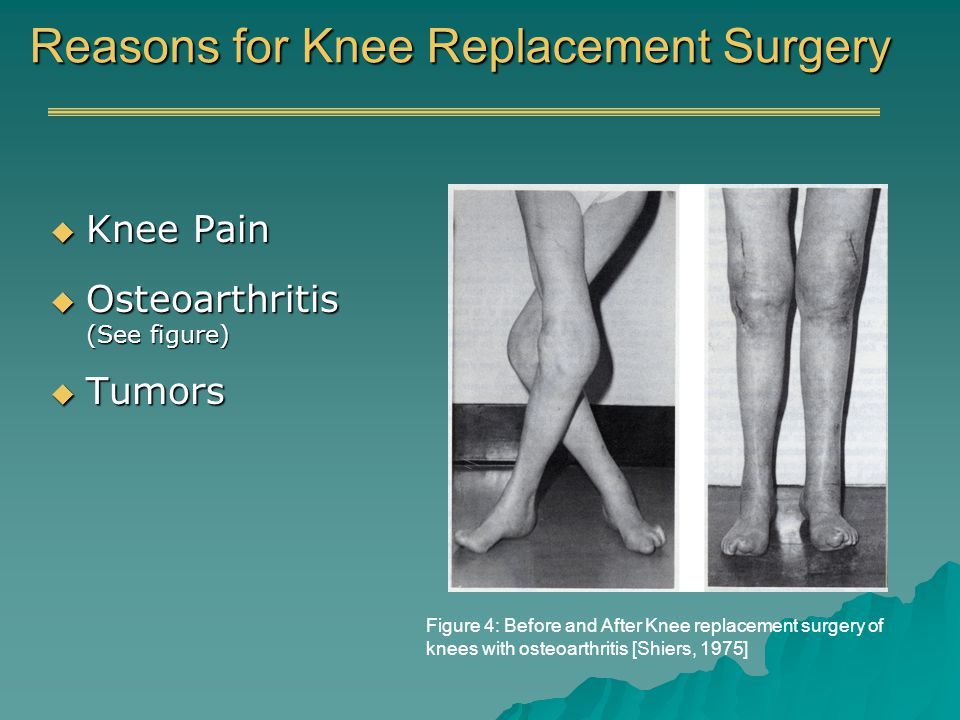 Reasons for Knee Replacement Surgery Knee Pain Knee Pain Osteoarthritis (See figure) Osteoarthritis (See figure) Tumors Tumors Figure 4: Before and After Knee replacement surgery of knees with osteoarthritis [Shiers, 1975]