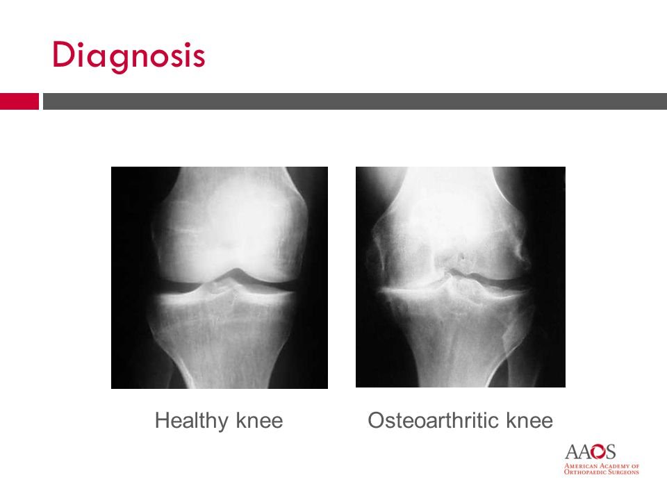18 Diagnosis Osteoarthritic kneeHealthy knee