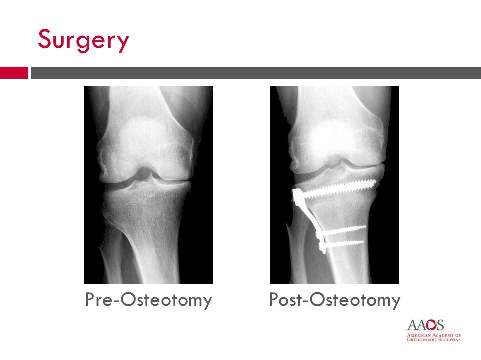 44 Surgery Pre-OsteotomyPost-Osteotomy