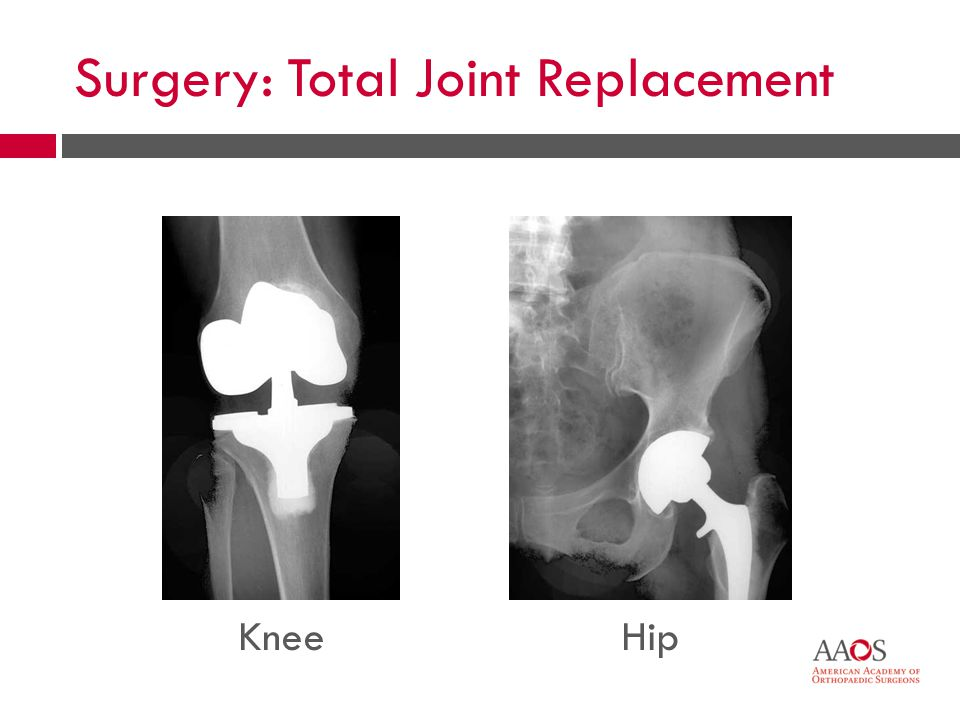 45 KneeHip Surgery: Total Joint Replacement