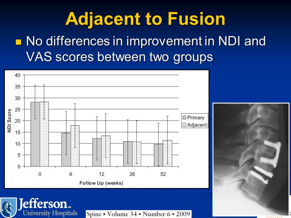 Adjacent to Fusion No differences in improvement in NDI and VAS scores between two groups No differences in improvement in NDI and VAS scores between