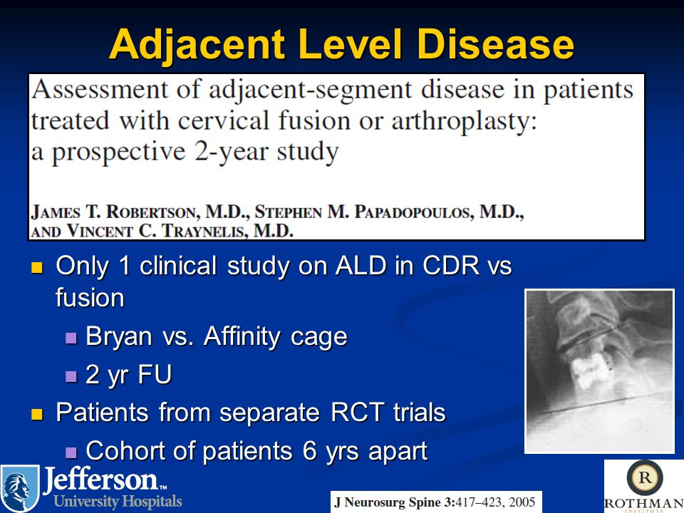 Adjacent Level Disease Only 1 clinical study on ALD in CDR vs fusion Only 1 clinical study on ALD in CDR vs fusion Bryan vs. Affinity cage Bryan vs. A