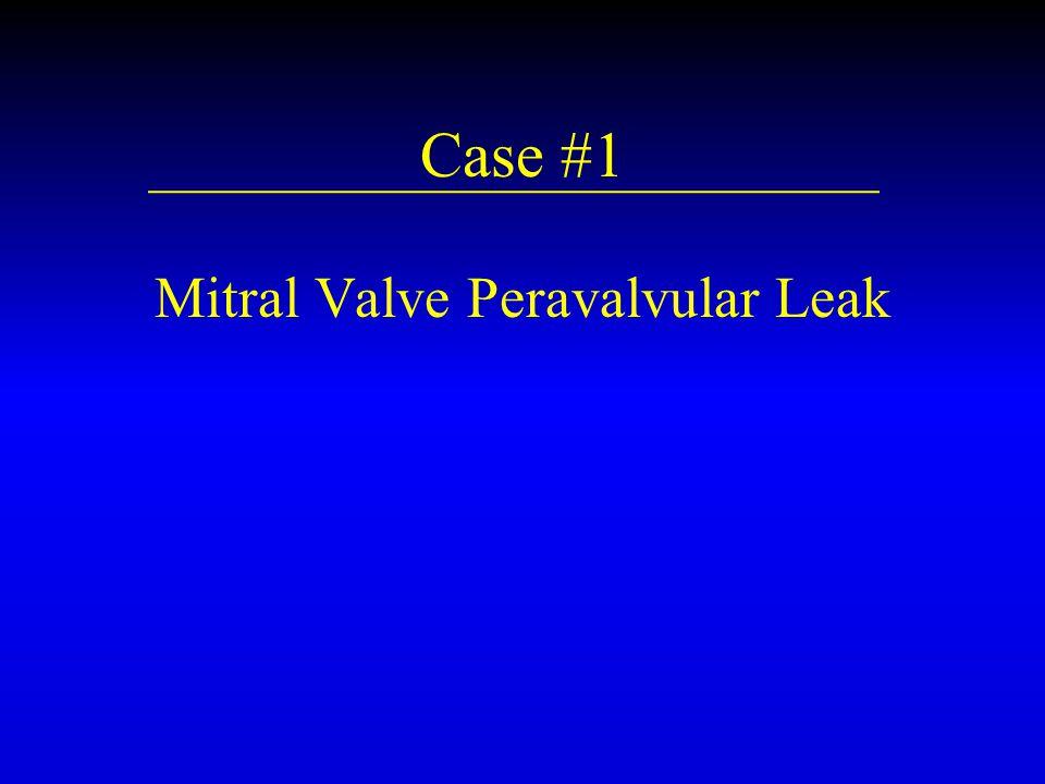 Case #1 Mitral Valve Peravalvular Leak