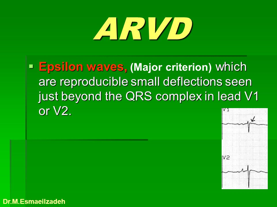 ARVD Epsilon waves, which are reproducible small deflections seen just beyond the QRS complex in lead V1 or V2. Epsilon waves, (Major criterion) which