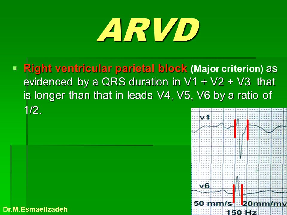 ARVD Right ventricular parietal block as evidenced by a QRS duration in V1 + V2 + V3 that is longer than that in leads V4, V5, V6 by a ratio of 1/2. R