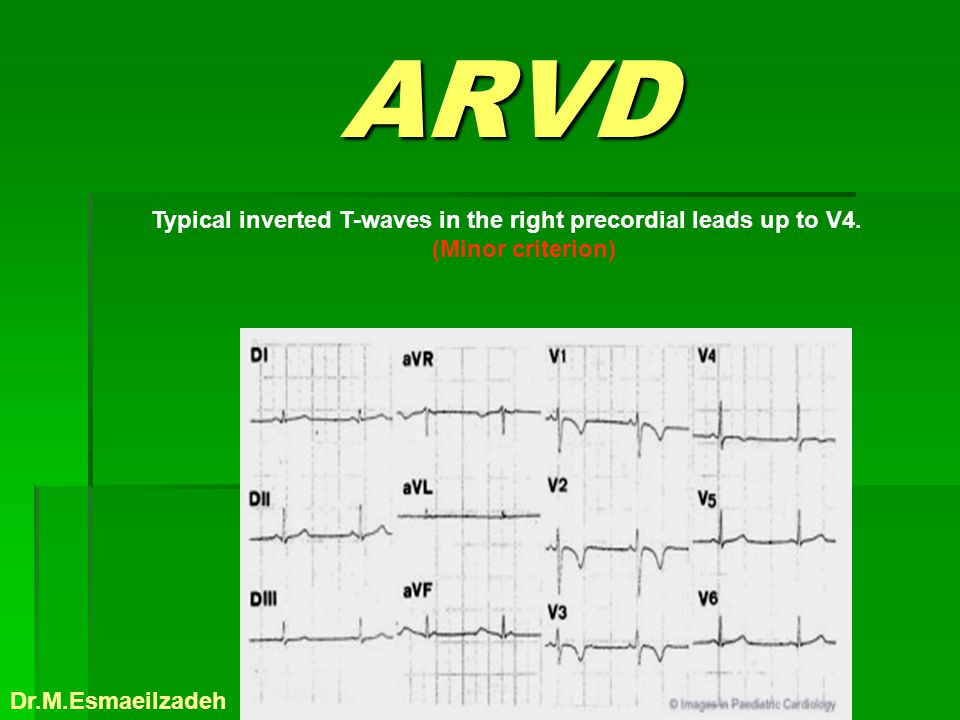 ARVD ARVD Typical inverted T-waves in the right precordial leads up to V4. (Minor criterion) Dr.M.Esmaeilzadeh