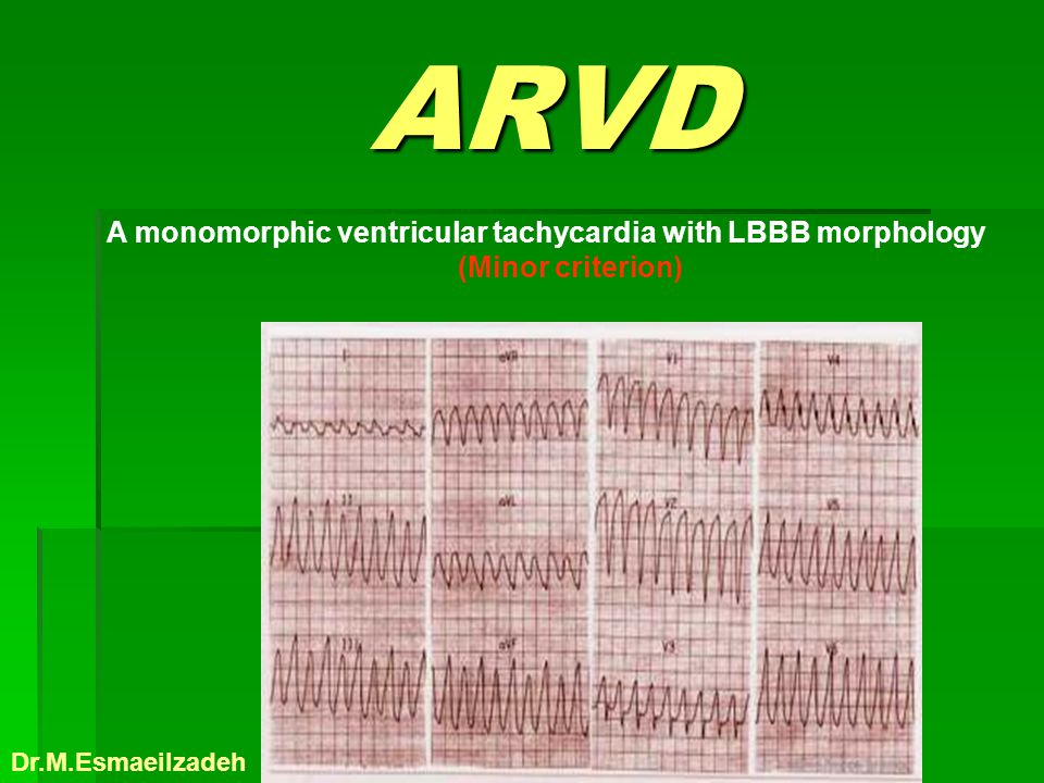 ARVD ARVD A monomorphic ventricular tachycardia with LBBB morphology (Minor criterion) Dr.M.Esmaeilzadeh