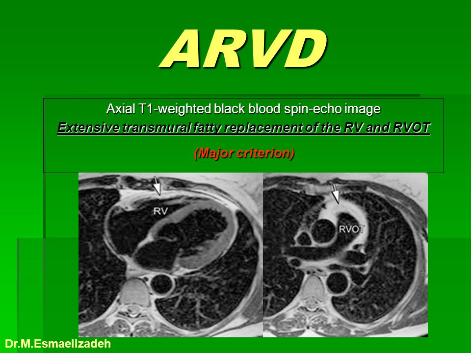 ARVD Axial T1-weighted black blood spin-echo image Extensive transmural fatty replacement of the RV and RVOT (Major criterion) Dr.M.Esmaeilzadeh