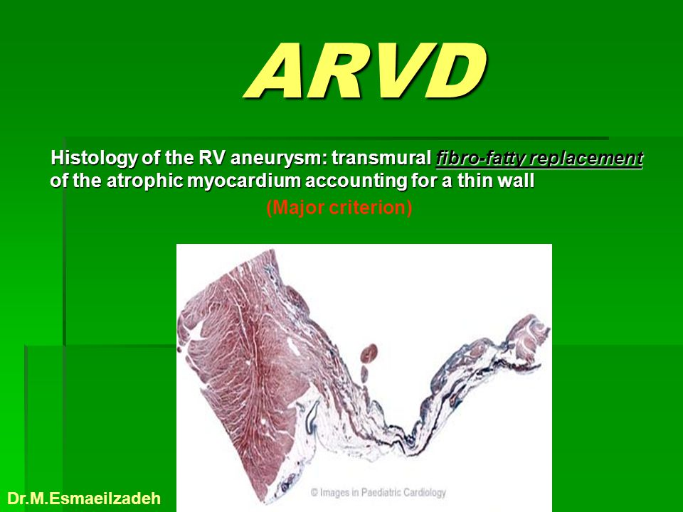 ARVD ARVD Histology of the RV aneurysm: transmural fibro-fatty replacement of the atrophic myocardium accounting for a thin wall Histology of the RV a