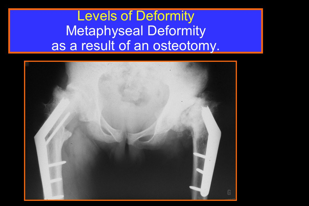 Levels of Deformity Metaphyseal Deformity as a result of an osteotomy.