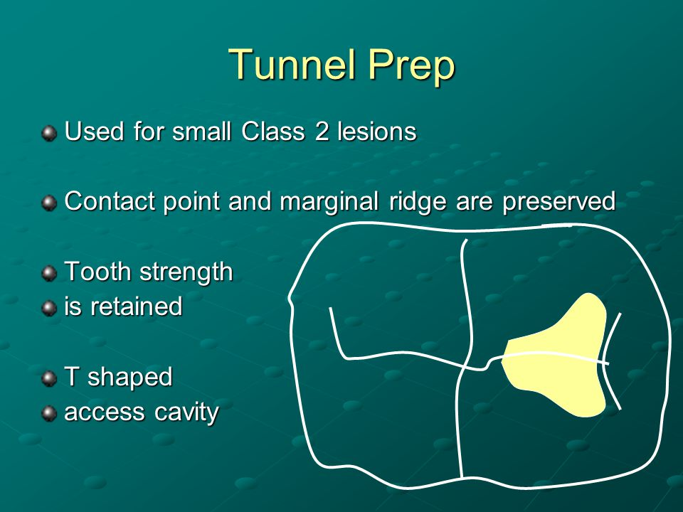 Tunnel Prep Used for small Class 2 lesions Contact point and marginal ridge are preserved Tooth strength is retained T shaped access cavity