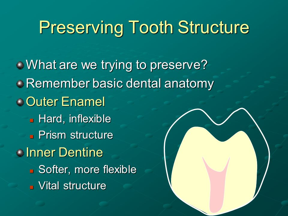 Preserving Tooth Structure Natural tooth structure is irreplaceable…..
