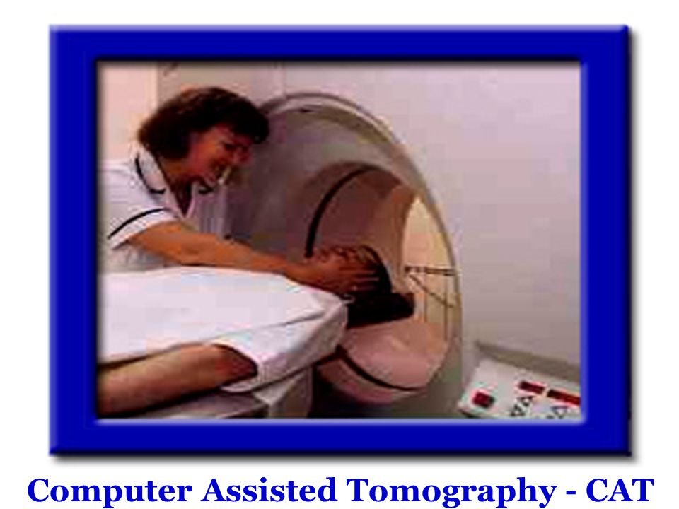Computer Assisted Tomography - CAT