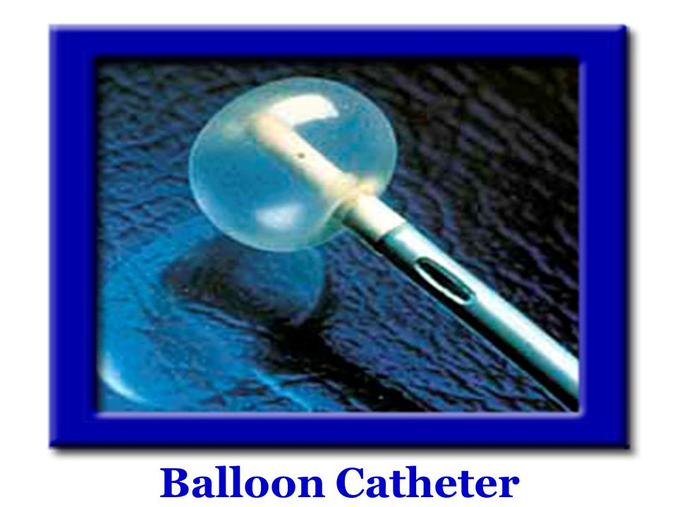 Balloon Catheter
